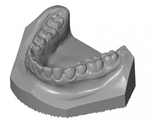 Empreinte dentaire